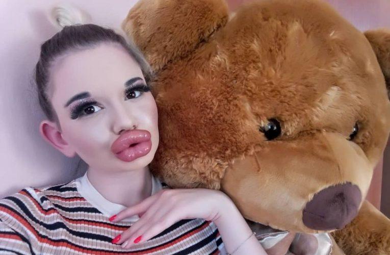 Gadis Nak Bibir Terbesar Dunia, Suntik 21 Kali Dengan Kos RM15k